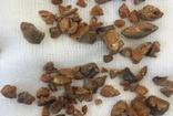 Elazığ'da bir hastanın iki böbreğinden 152 parça taş çıkartıldı