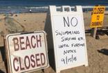 ABD'de köpek balığı saldırısına uğrayan sörfçü hayatını kaybetti