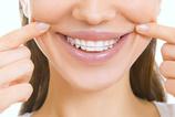 Diş teli ağızda ne kadar kalır?