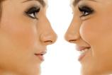 Rinoplasti ameliyatından sonra burnumun nasıl olacağını görebilir miyim?
