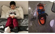 Başakşehir'de AVM'de yürüyen merdivene ayağı sıkışan çocuğun 2 parmağı koptu