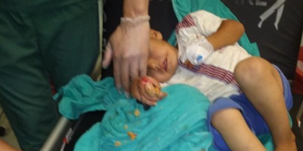 Kahramanmaraş'ta 3 yaşındaki çocuk eli kıyma makinesine kaptırdı