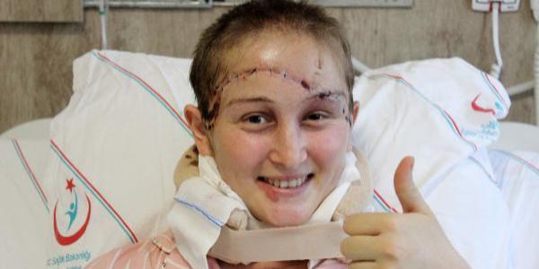 Uşak'ta pancar makinesine saçlarını kaptıran Binnaz'ın baş derisi koptu, cesur kız kanlar içinde traktörü kullanıp eve ulaştı
