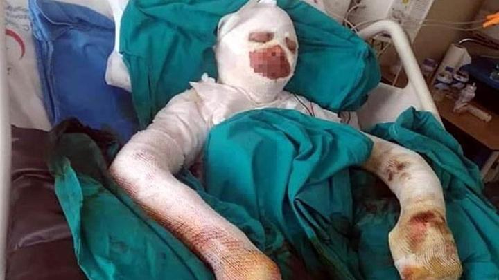 Erzincan'da liseli kız bitlenen saçlarını benzinle yıkamak isterken alevler içinde kaldı