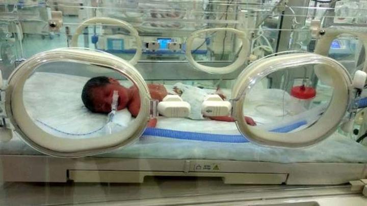 Mardinli genç çiftin dördüz bebekleri oldu