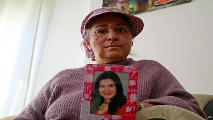 Antalya'da cilt kanseri kadının kabusu güneş