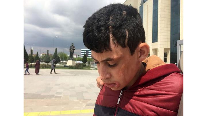 Konya'da komşusuna ve çocuklarına kezzapla saldıran tutuklu hakim karşısına çıktı