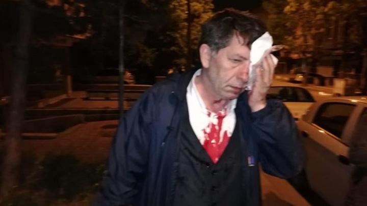 Gazeteci Yavuz Selim Demirağ Ankara'da evinin önünde darp edildi