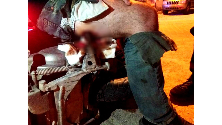 İzmir'de kazada motosikletin ayaklığı bacağına saplandı
