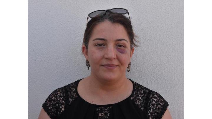 Adana'da kaza sonrası yaralıya müdahale eden hemşire ve eşini 2 kişi sopayla darp etti