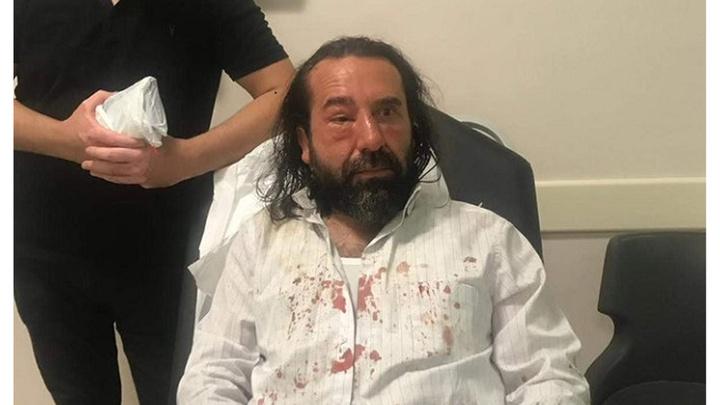 İYİ Parti kurucularından Metin Bozkurt, 8 kişilik grubun saldırısına uğradı