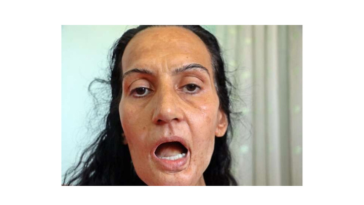 Dil kanserine yakalanınca eşi terk etti, kızı ile yaşam mücadelesi veriyor