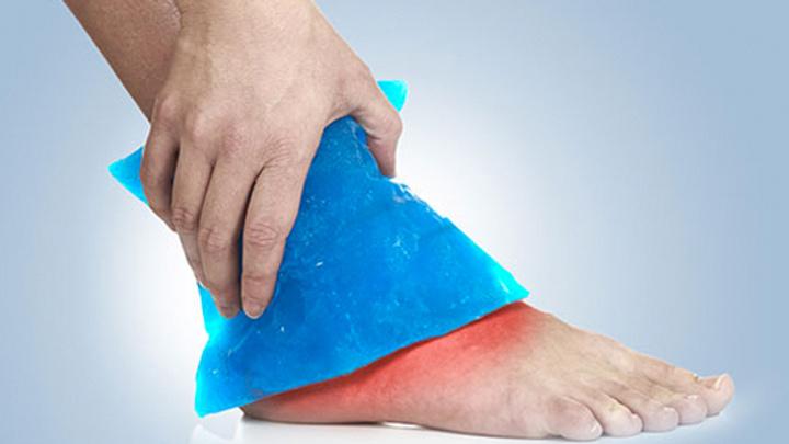 Ayak bileği burkulması nedir? Nasıl tedavi edilir?